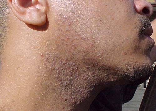 Before-Impeccable-After-Shave-Treatment-contact-impeccable-after-shave