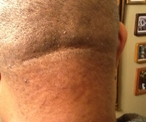 Razor Bump Treatment for Back of the Neck